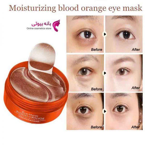 پچ زیر چشم پرتقال خونی IMAGES
